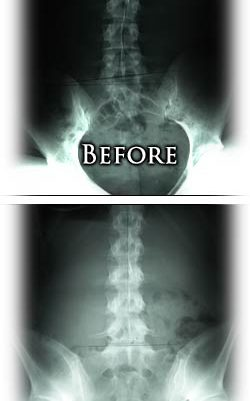 scoliosis and spinal correction